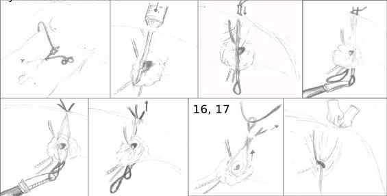 ped inguinal hernia 19