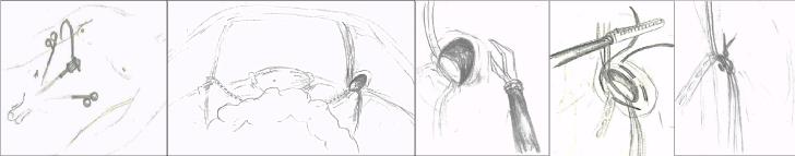 ped inguinal hernia 3