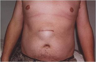 Laparoscopic Ventral Hernia Repair