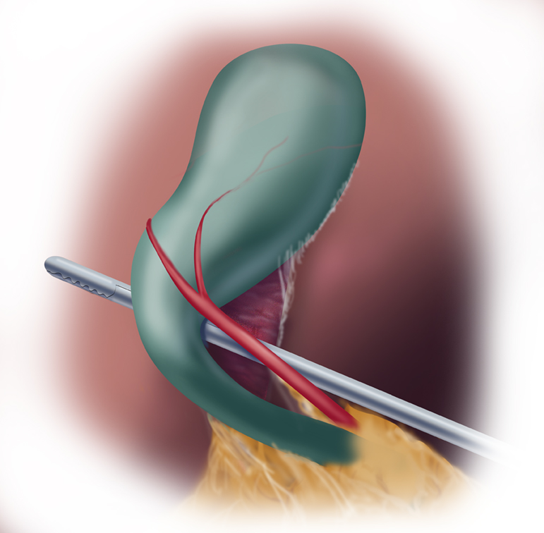 Safe Chole Figure 1A Critical view of safety anterior view
