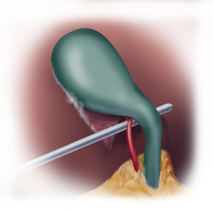 Safe Chole Figure 1B Critical view of safety posterior view
