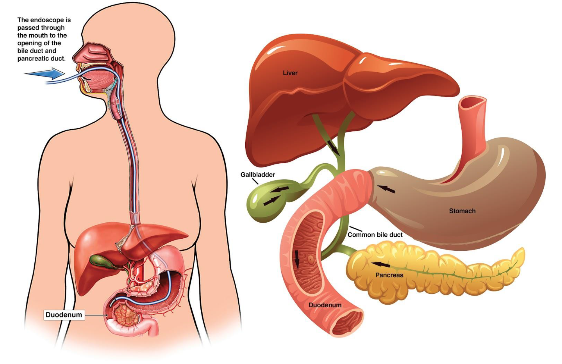 Ercp Endoscopic Retrograde Cholangio Pancreatography Patient Information From Sages