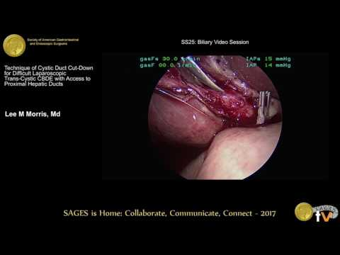SAGES TV: Laparoscopy and Endoscopy Surgery Videos - Page