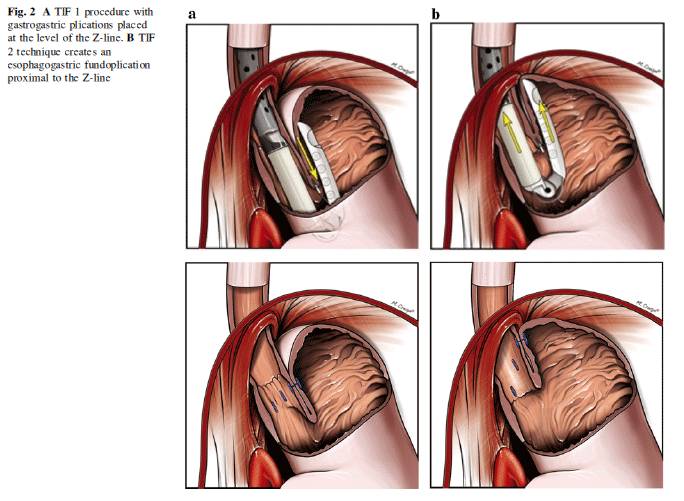 TIF 1 Procedure with gastrogastric plications