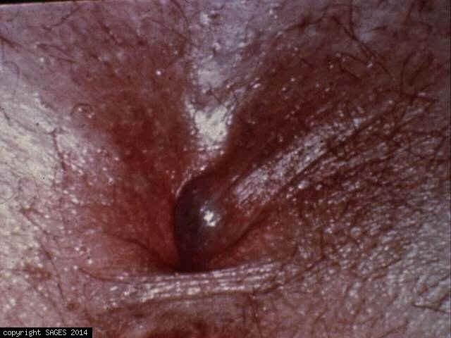 Thrombosed Ext ... Thrombosed Hemorrhoids