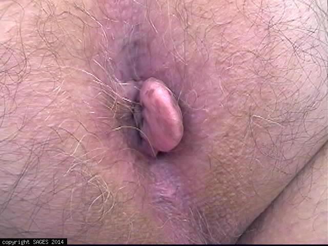 Girls asshole bleeding after anal fucking