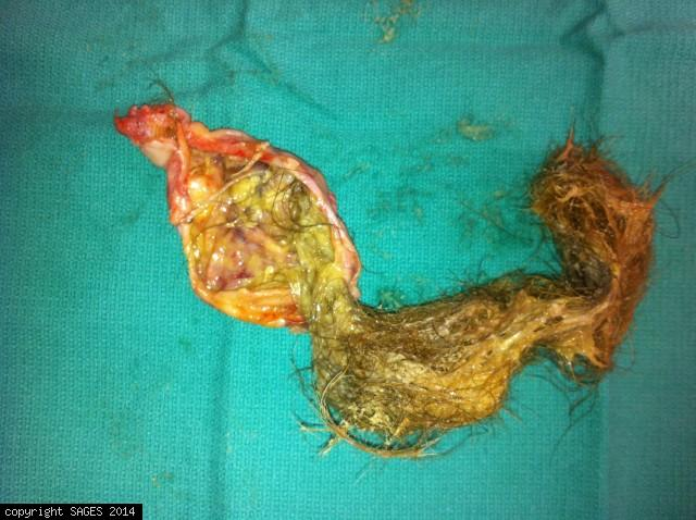 Dermoid cyst -SAGES Image Library