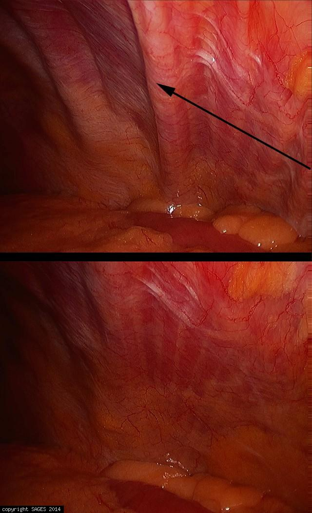 diaphragm spasm and  post spasm