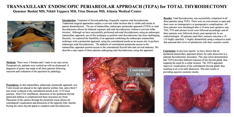 Transaxillary Endoscopic Periareolar Approach (tepa) to Total ...