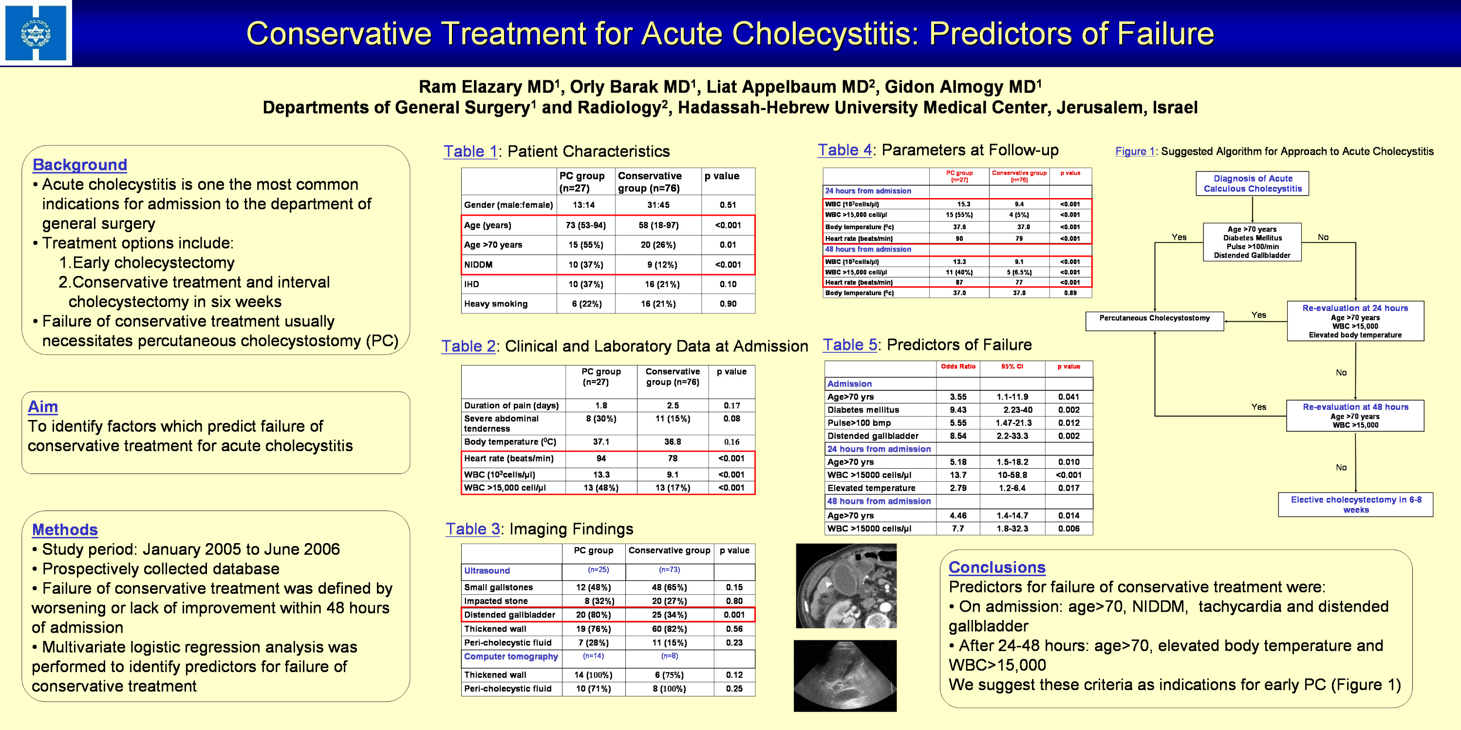 Symptoms and treatment of calculous cholecystitis