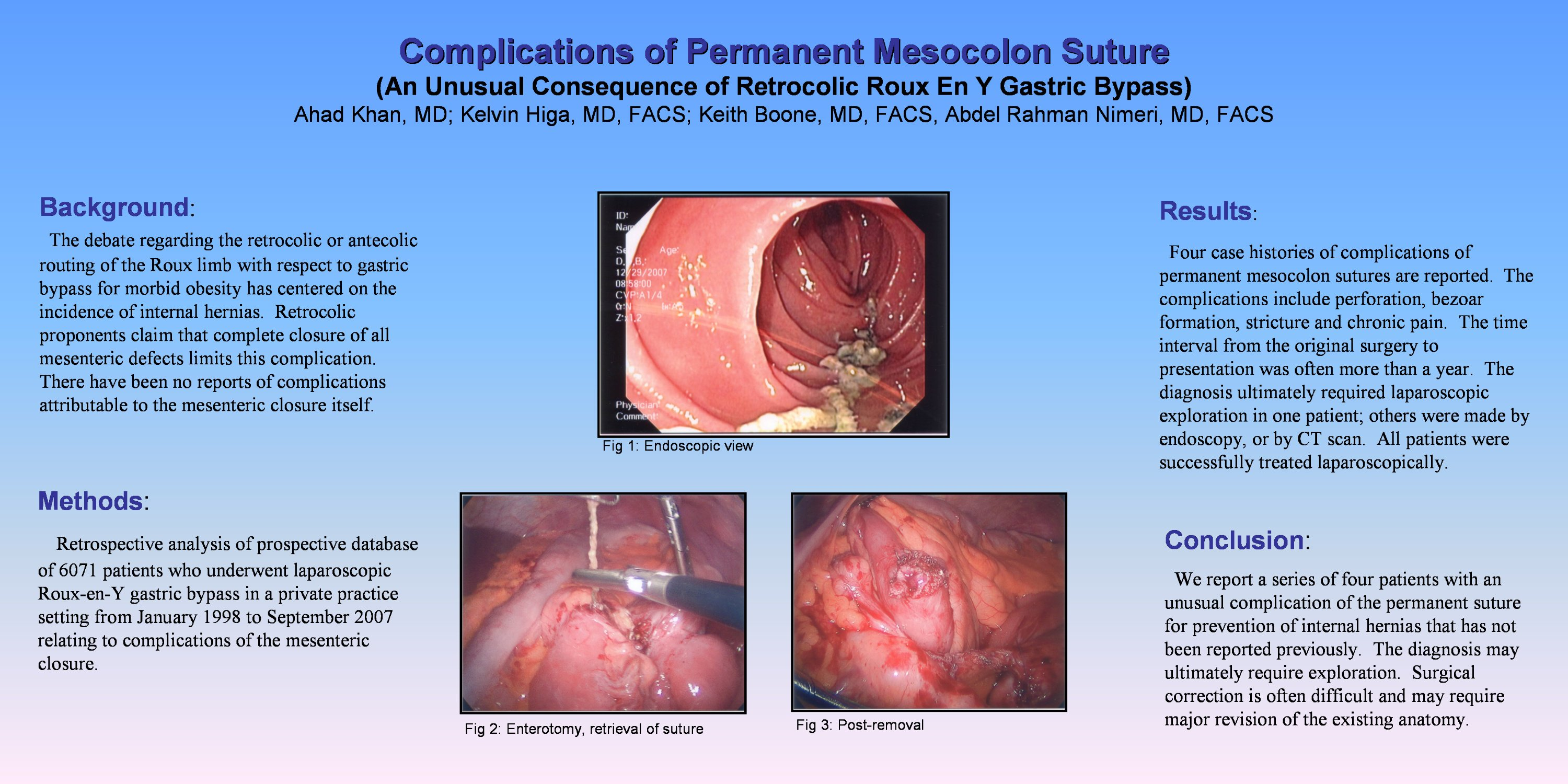 Complications Of Permanent Mesocolon Suture An Unusual Consequence