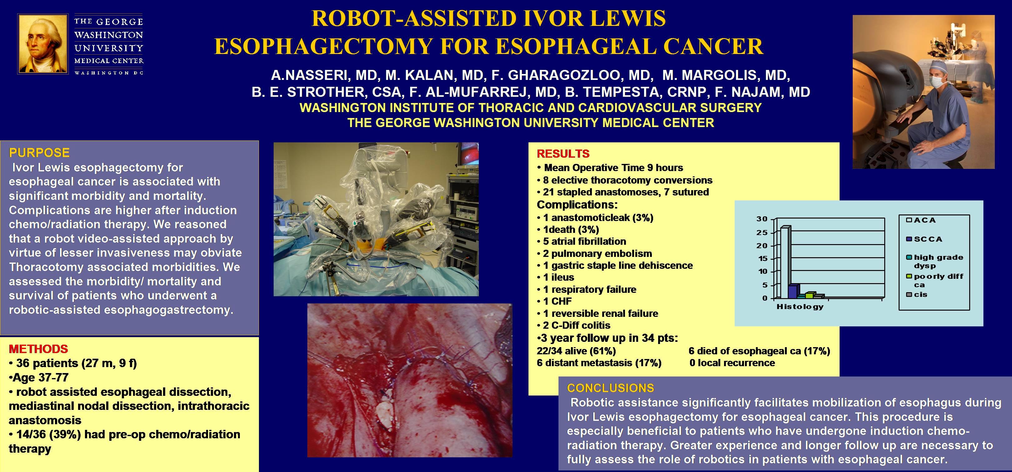 Robot-Assisted Ivor Lewis Esophagogastrectomy for Esophageal