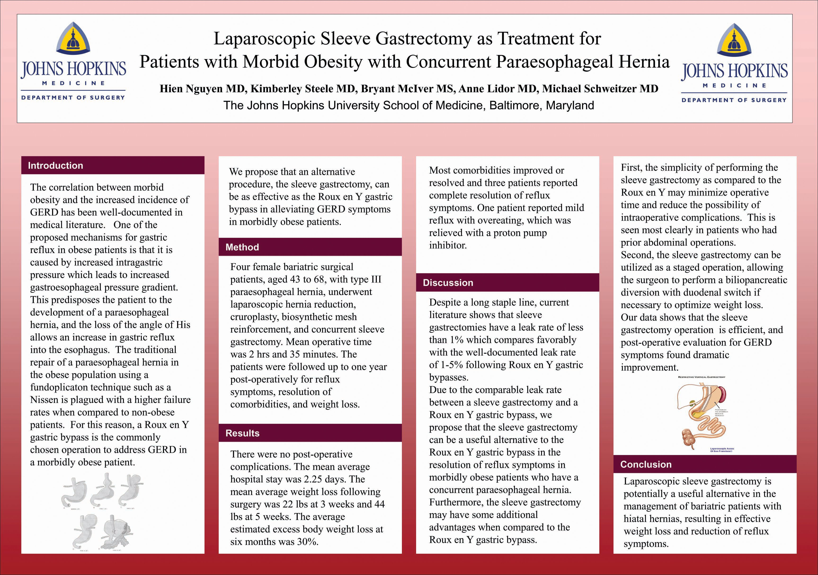 Laparoscopic Sleeve Gastrectomy As Treatment For Patients With