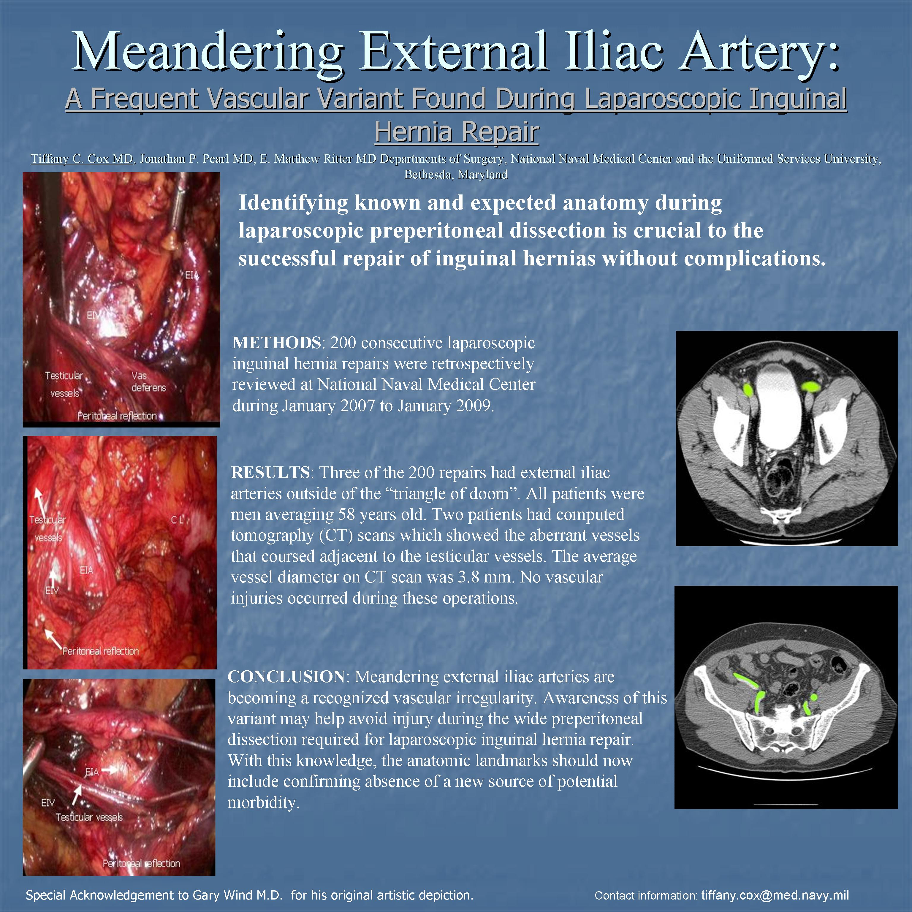 Meandering External Iliac Artery: A Frequent Vascular Variant Found ...