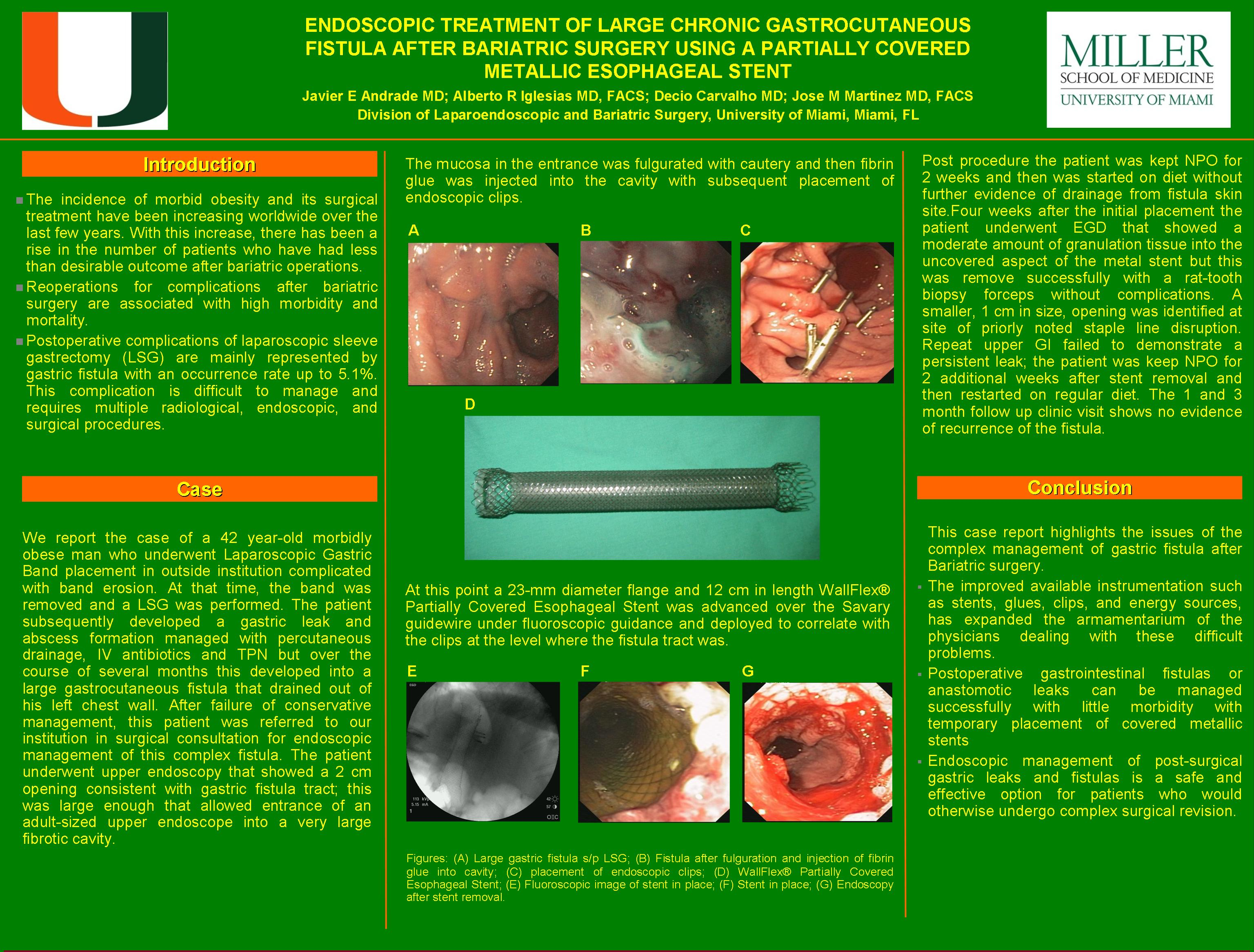 Endoscopic Treatment Of Large Chronic Gastrocutaneous Fistula After