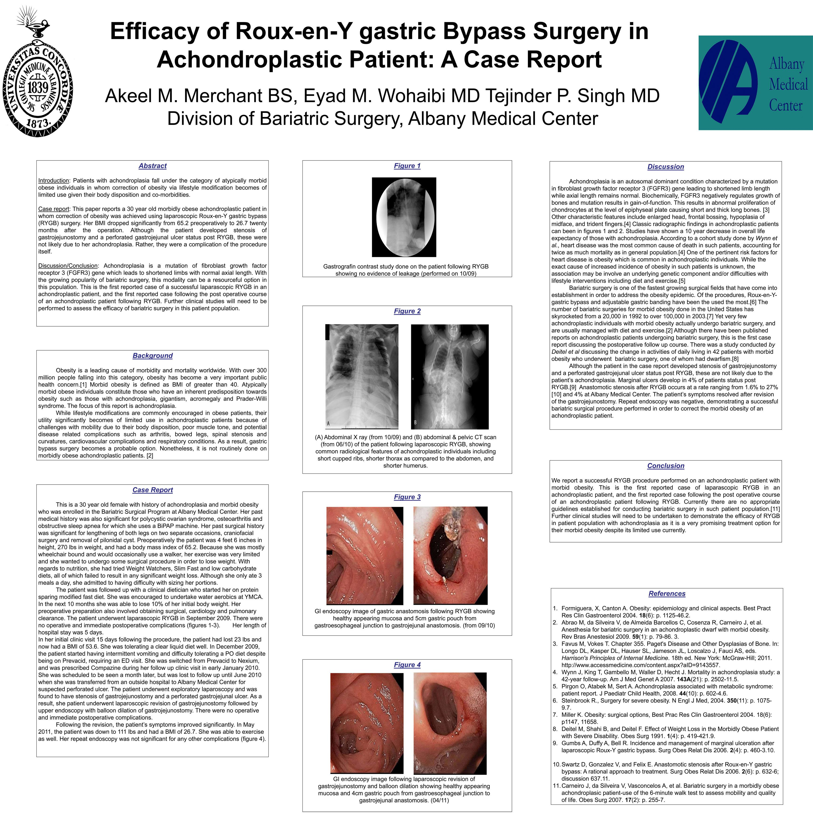 bariatric surgery essay