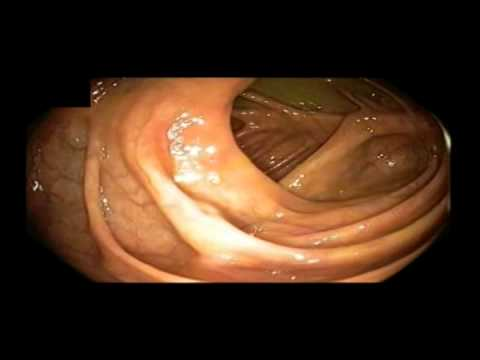 normal appendiceal orifice cecum and ileocecal valve from
