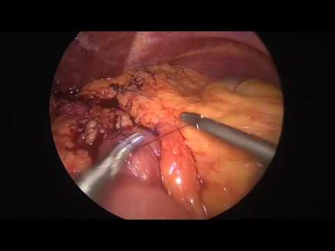 SAGES TV: Laparoscopy and Endoscopy Surgery Videos - Page 99 of 899